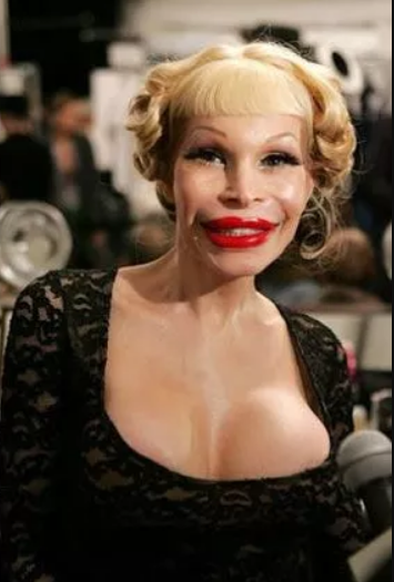 Celebrities who took plastic surgery too far