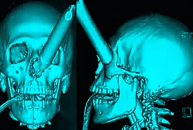 crazy x-ray pics