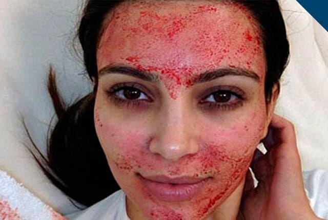 dangerous beauty treatments