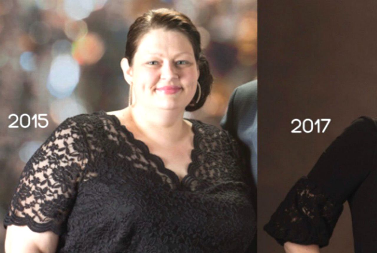 woman lost more than 150 pounds