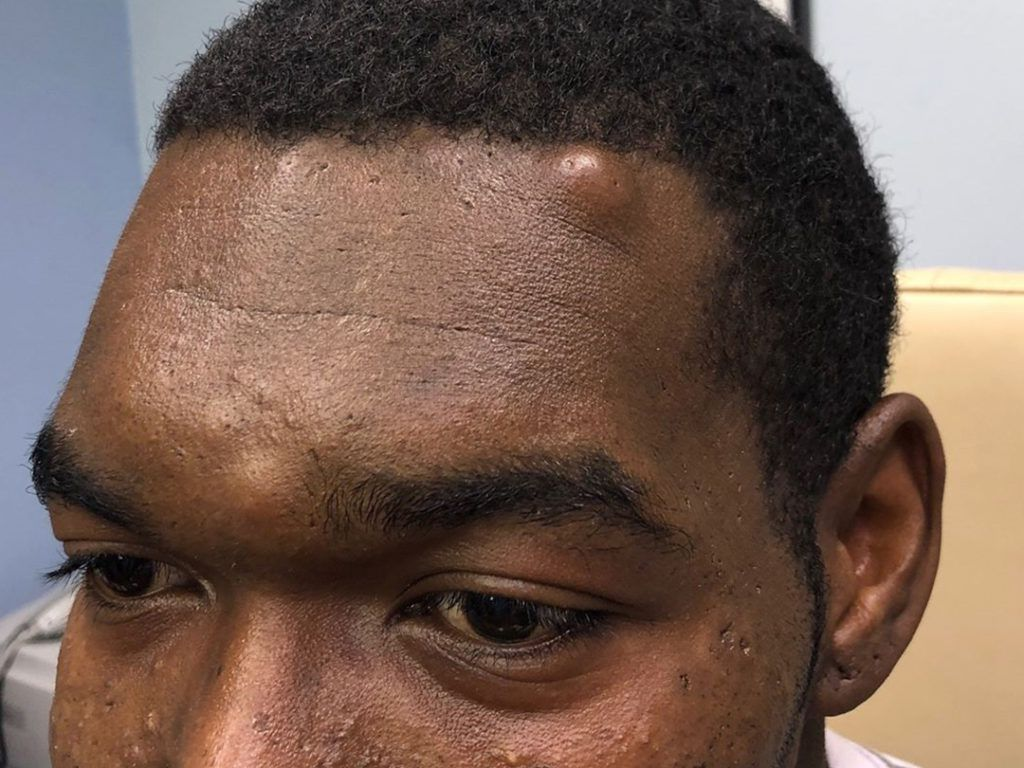 Guy With A Baseball Sized Zit On His Head Asks Dr Pimple